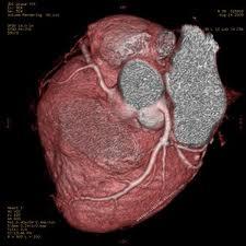 10 cara mencegah penyakit jantung